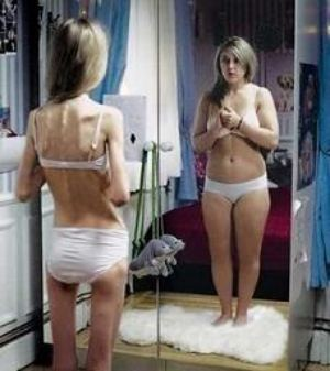 anorexia y bulimia Anorexia y Bulimia en la Adolescencia.