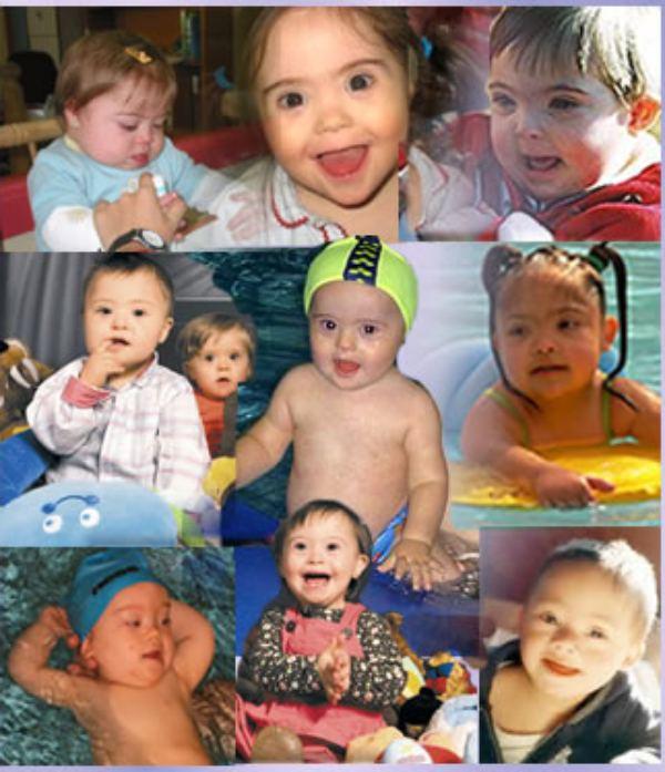 niños con síndrome down